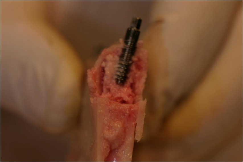 Smart implant in the mandible