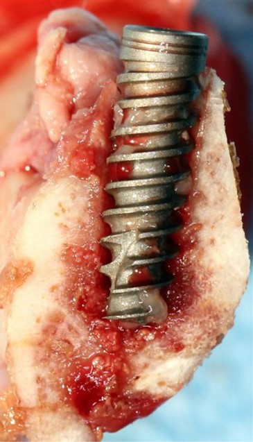 Standard implant in the mandible